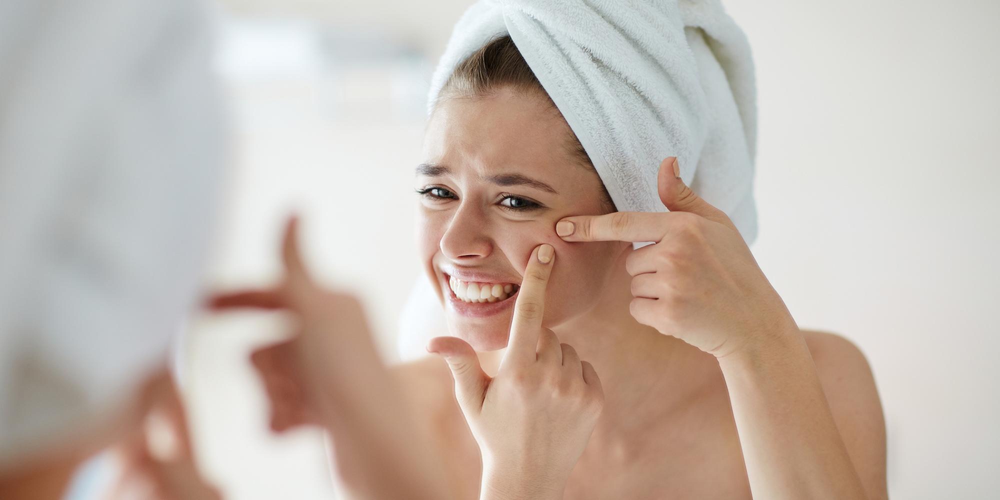 acné-y-granitos-en-la-cara