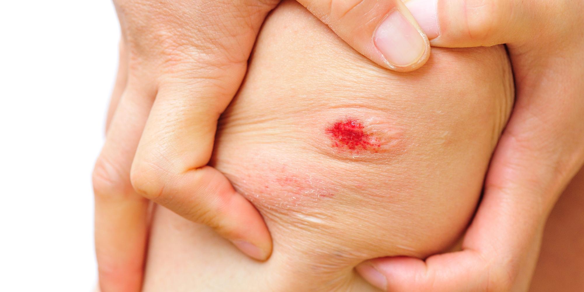 infección-herida