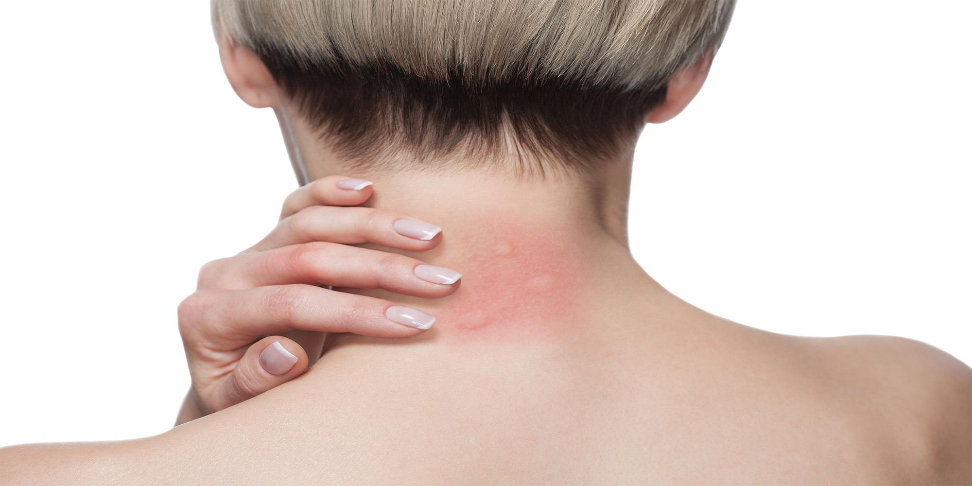 Picaduras de insecto: Tratamiento antiséptico